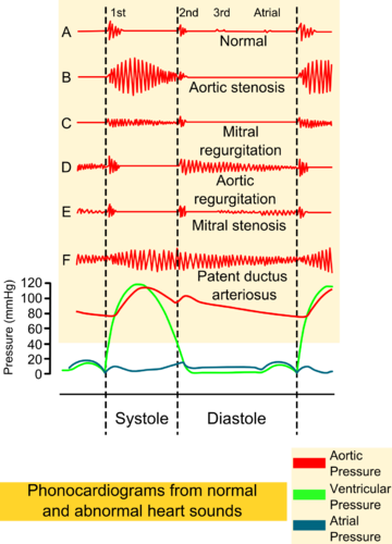 Filephonocardiograms from normal and abnormal heart soundsg filephonocardiograms from normal and abnormal heart soundsg wikipedia the free encyclopedia ccuart Gallery