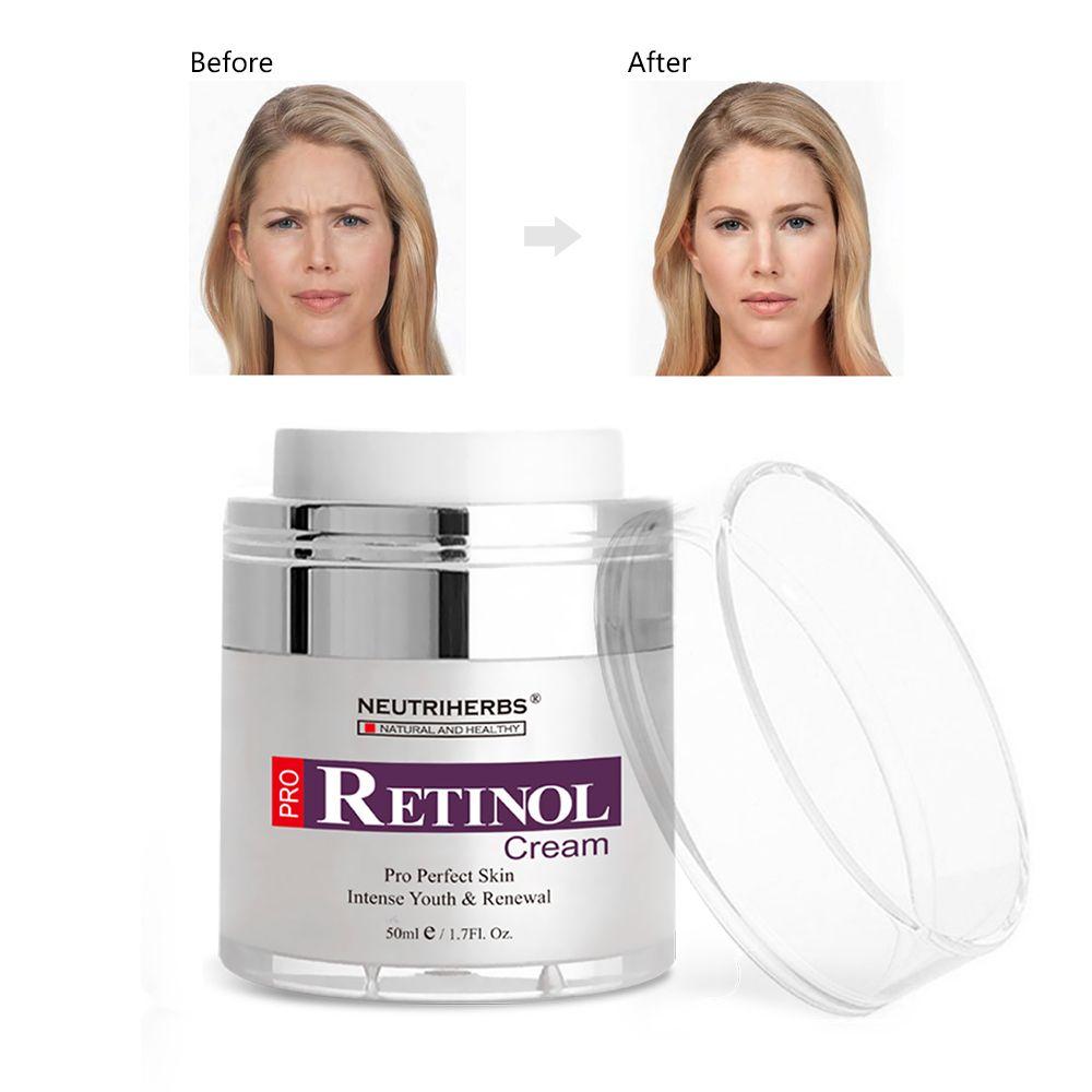 Neutriherbs Best Retinol Cream For Acne And Wrinkles Best Retinol Cream Retinol Cream Benefits Retinol Cream