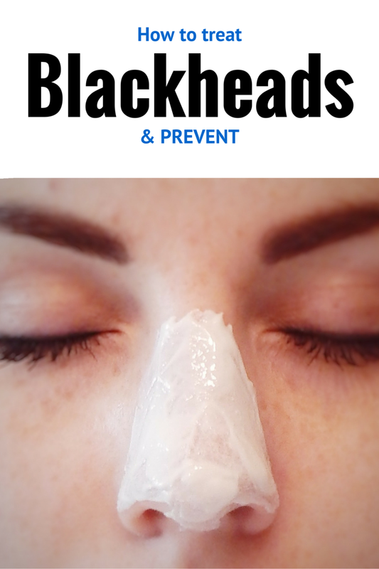 Great tips on avoiding those nasty blackheads!!!