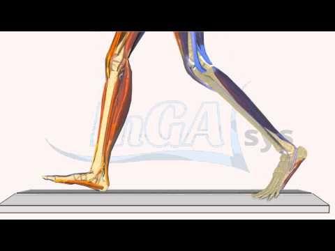 Schmerzen im Wadenbereich  InGAsys  Intelligente Ganganalyse Software