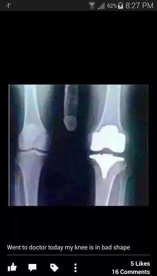 Funny Xray Meme : Bad knee xray funny pics memes health pinterest