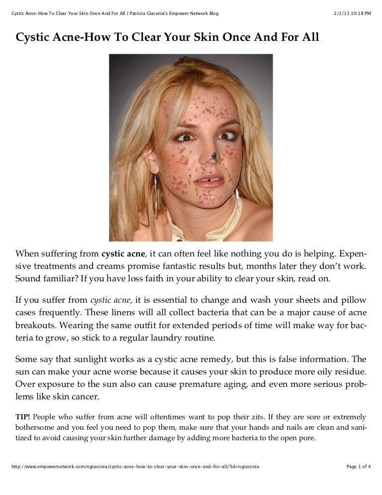 Do diet pills cause high blood pressure picture 10