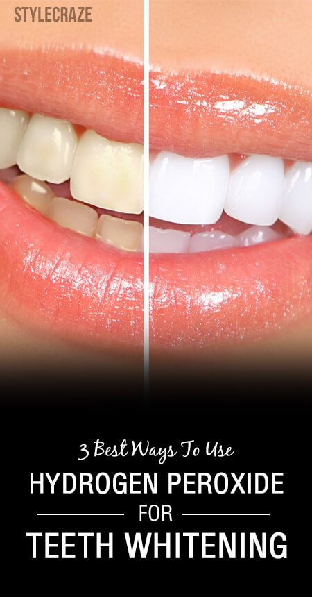 Can You Use Hydrogen Peroxide For Teeth Whitening Will It Help You Remove Those Yellow Stains Yes 3 Hydrogen Peroxide Solution Is Safe For Teeth