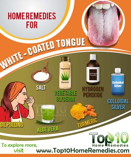 Home Remedies For A White Coated Tongue Home Remedies