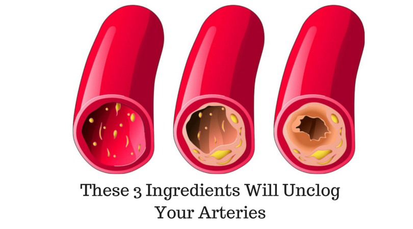 Remove Artery Clogs Naturally