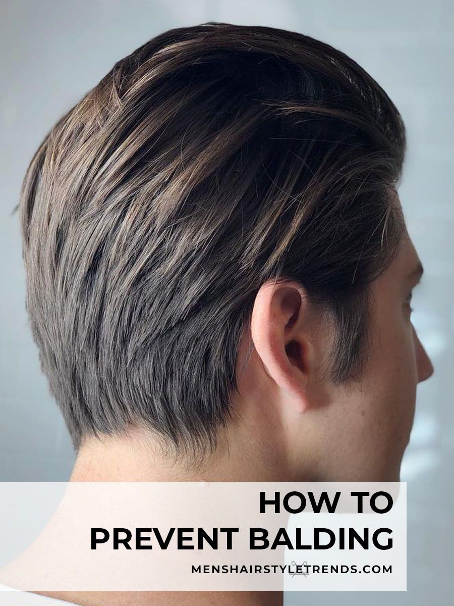 Balding the signs howto stop prevent baldness