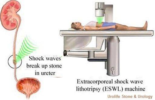 Shockwave Lithotripsy Eswl Kidney Stones Kidney Laser Treatment