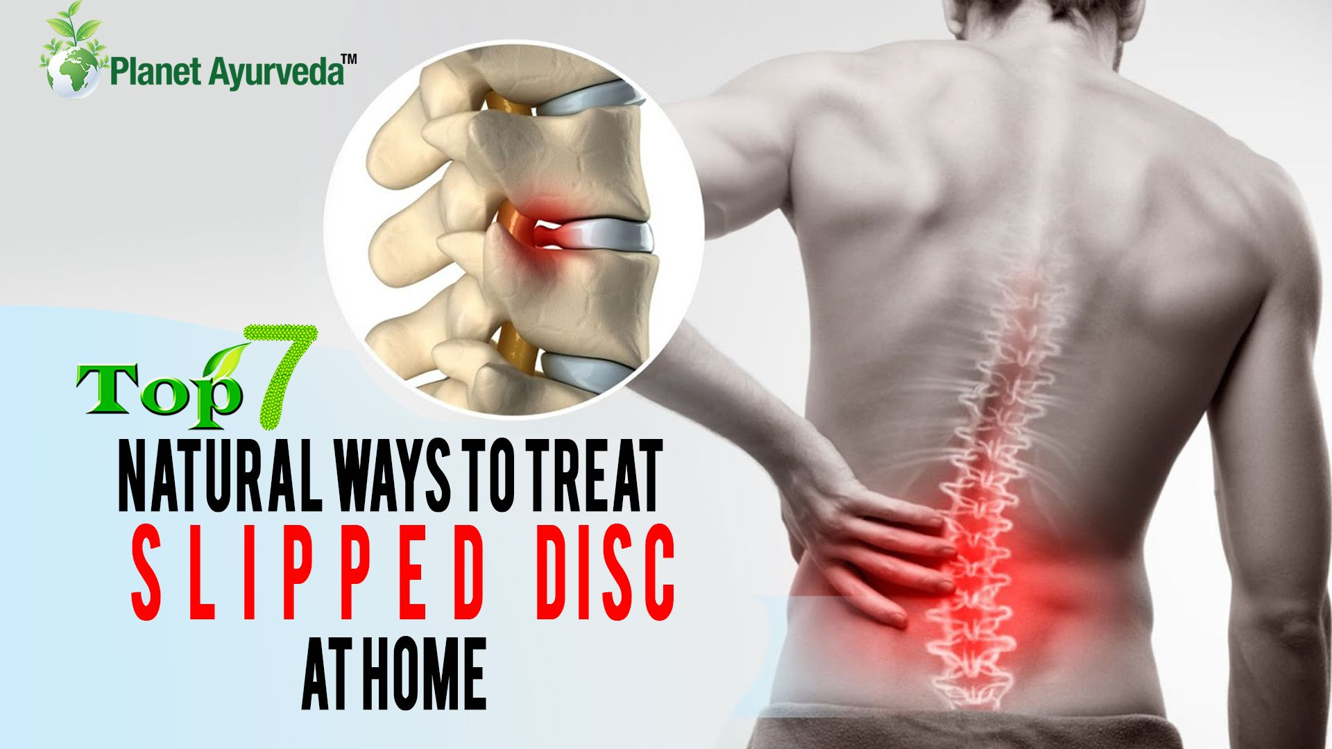 Top 7 Natural Ways to Treat Slipped Disc at Home ...