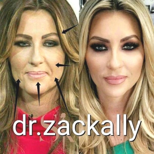 Pin by Diane on Fillers in 2020 (With images) | Celebrity ...