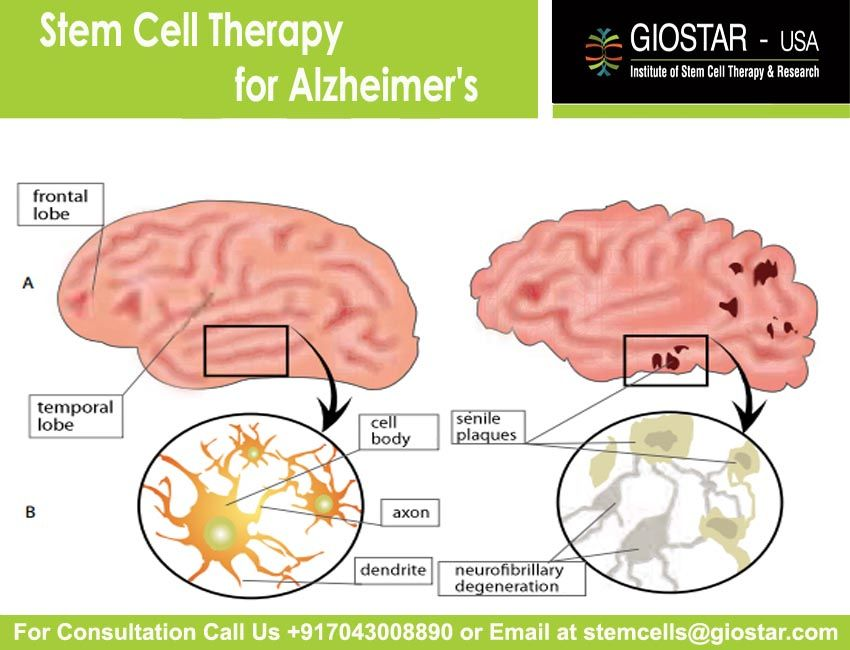 pharmacological treatments for alzheimer s disease Billions of dollars spent in drug research for dementia, and this is all we have, so far, to offer patients and families for pharmacologic treatment there is still no cure for alzheimer disease (ad), or any of the other dementias.