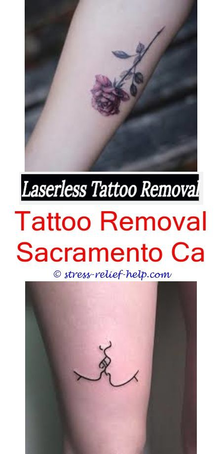 Easy Tattoo Removal Tca Acid Tattoo Removal When Can You Be Court Ordered To Remove A Tattoo Laser Tattoo Removal Results Did Chris Brown Removes
