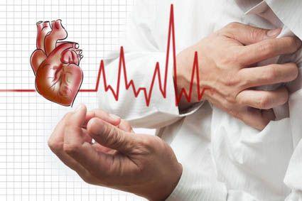 Aritmie cardiaca 2