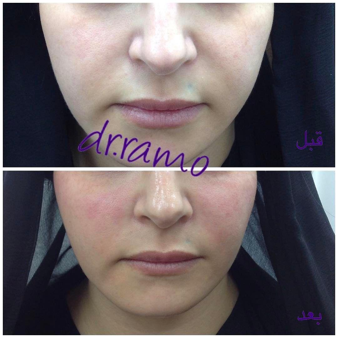 الخيوط لشد الخدين و تحسين خطوط الابتسامة دون حقن الفيلر والنتيجة فورا بعد الاجراء مركز الشارقة الع Simple Skincare Lip Fillers Dry Skin Patches