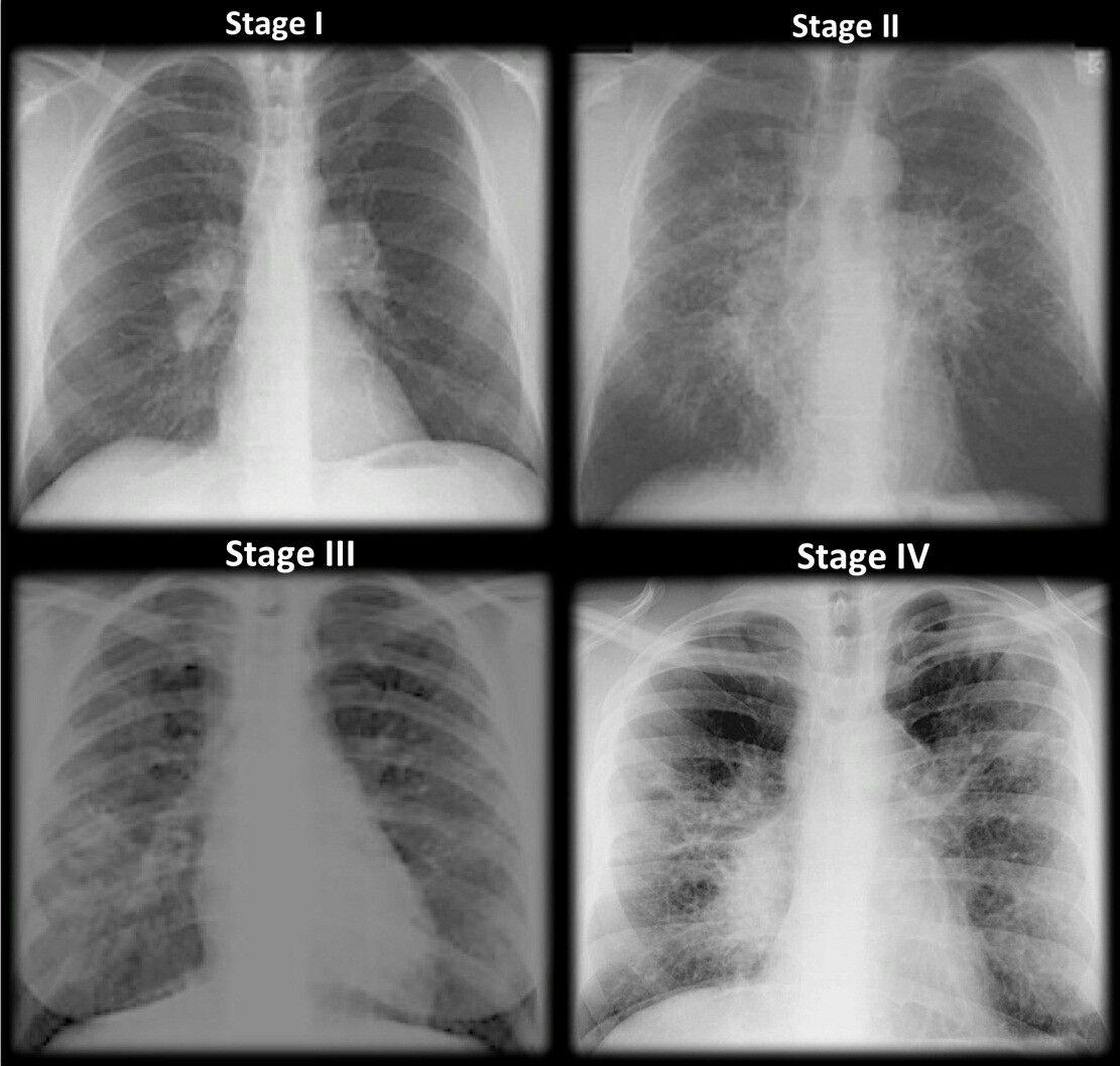 Sarcodiosis stages Emergency nursing, Radiology, Icu nursing