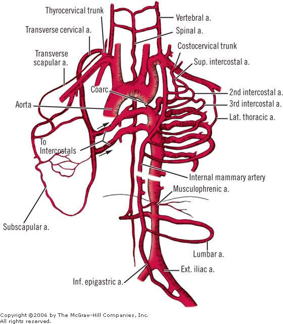 a collateral arterial channels in aortic coarctation the