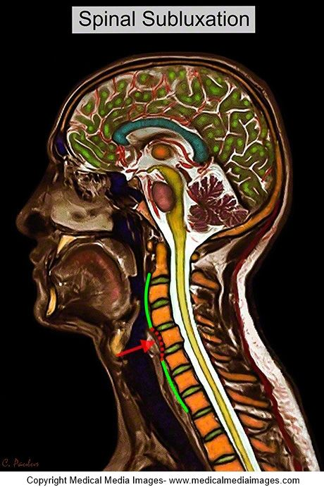 Chiropractic Color MRI showing a Neck Subluxation. Ideal for ...