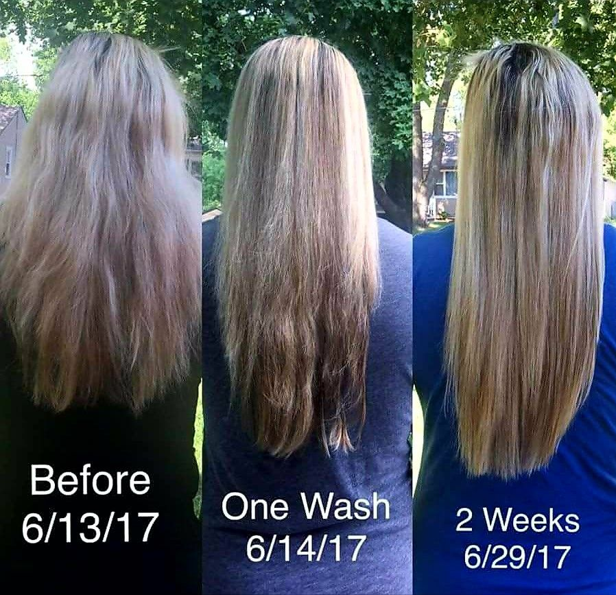 These results though after using MONAT for two weeks is