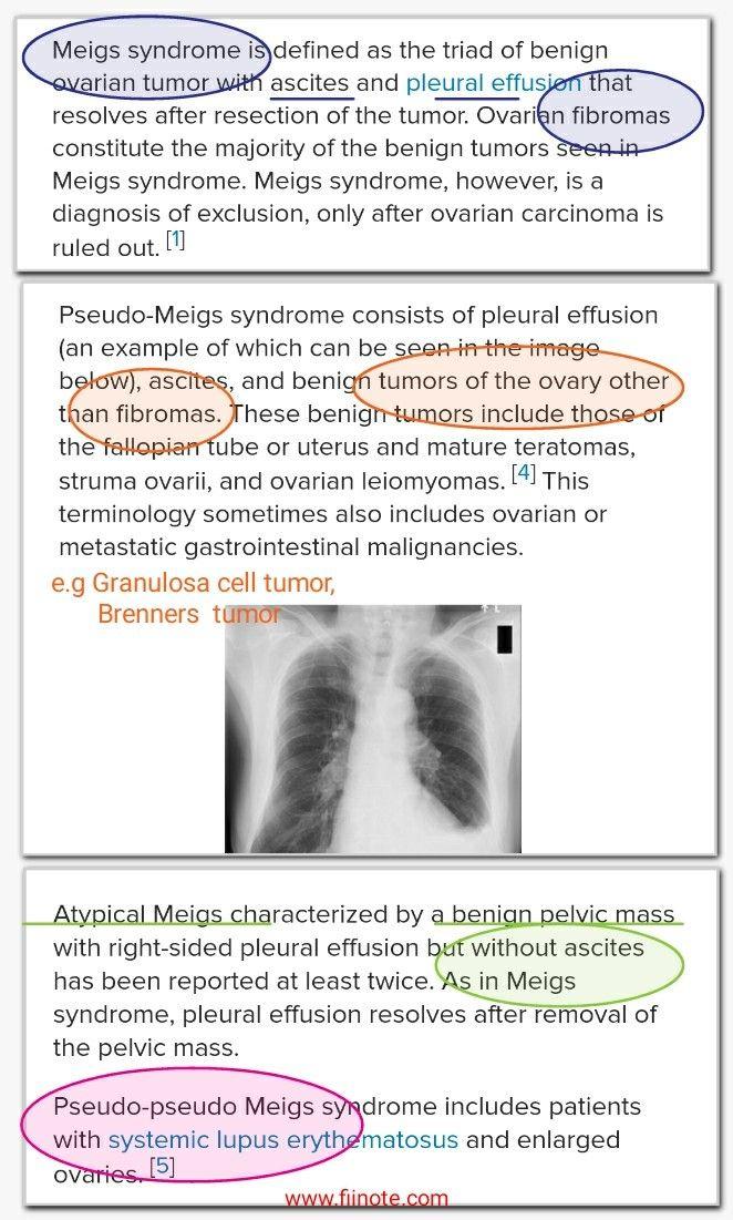 Meig Syndrome Pseudo Meig Syndrome Pseudo Pseudo Meig Syndrome Atypical Meig Syndrome Ascites Pleural Ef Pleural Effusion Ovarian Tumor Tumor