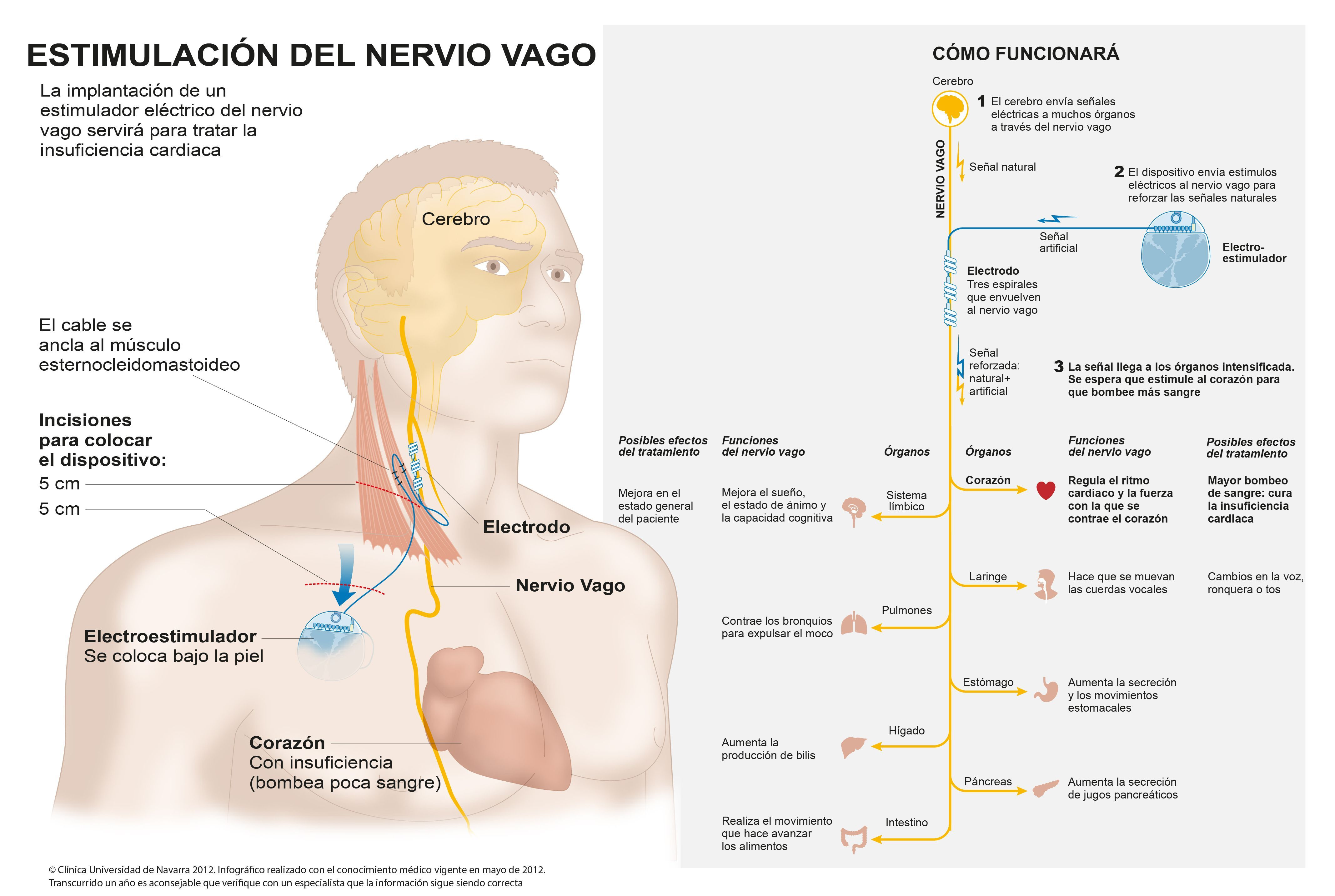 https://www.google.com.ar/search?q=estimulacion nervio vago para ...