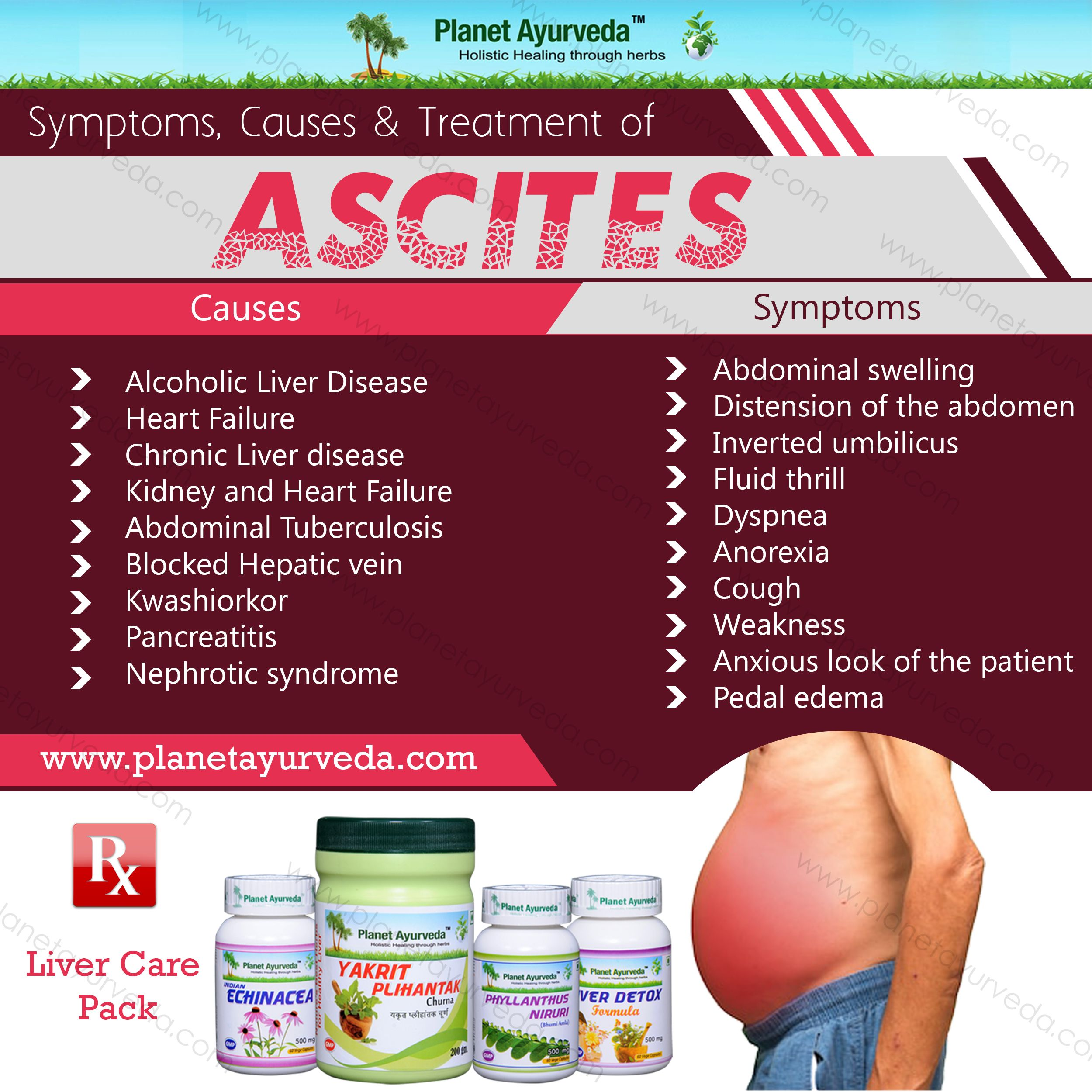 ascites is a very nasty condition related to the gastrointestinal