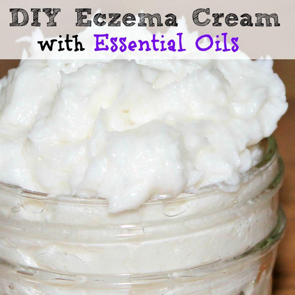 Diy homemade eczema cream with essential oils best cream