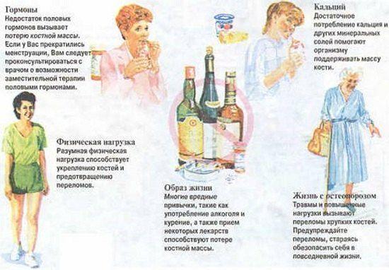 Картинки по запросу постклимактерический остеопороз лечение ...