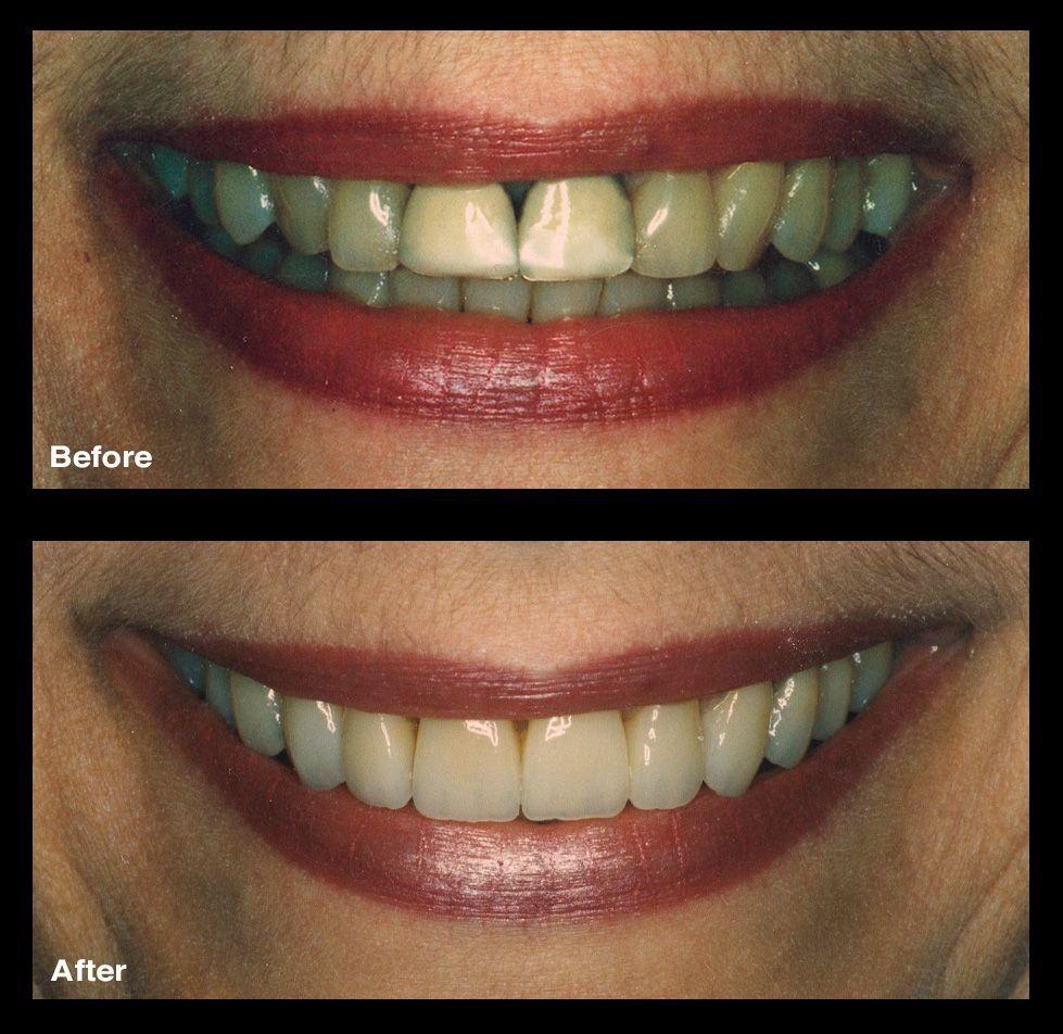 Coherent Fake Teeth Cosmetic Dentistry #dentistadobem # ...