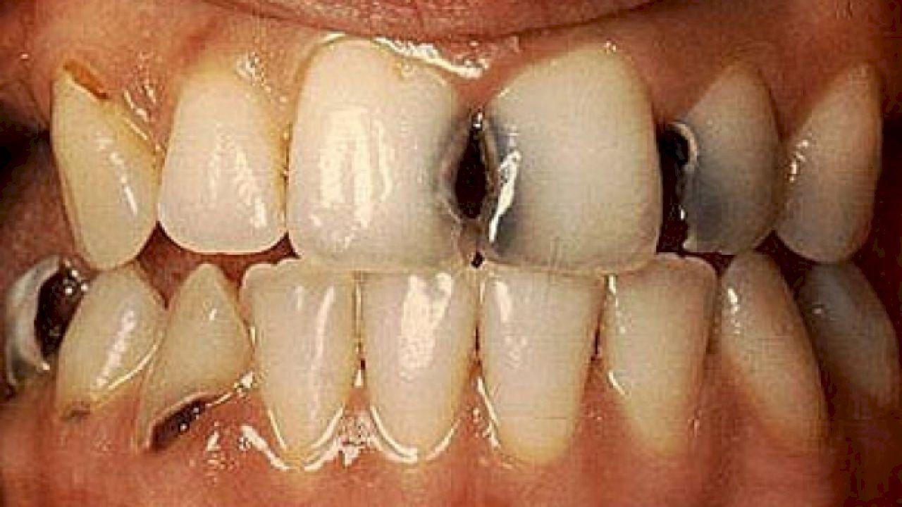 تعريف تسوس الأسنان Tooth Decay Signs Of Tooth Decay Teeth