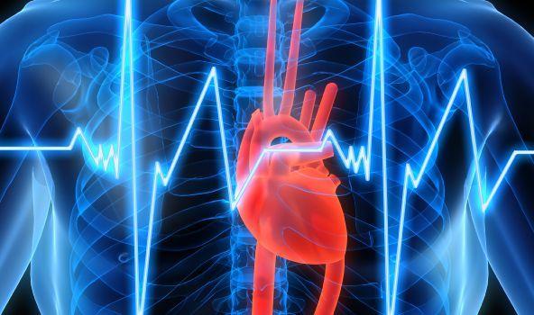 EKG de AKS yönünü hesaplama, Sağ AKS sapması, sol AKS sapması ve ...