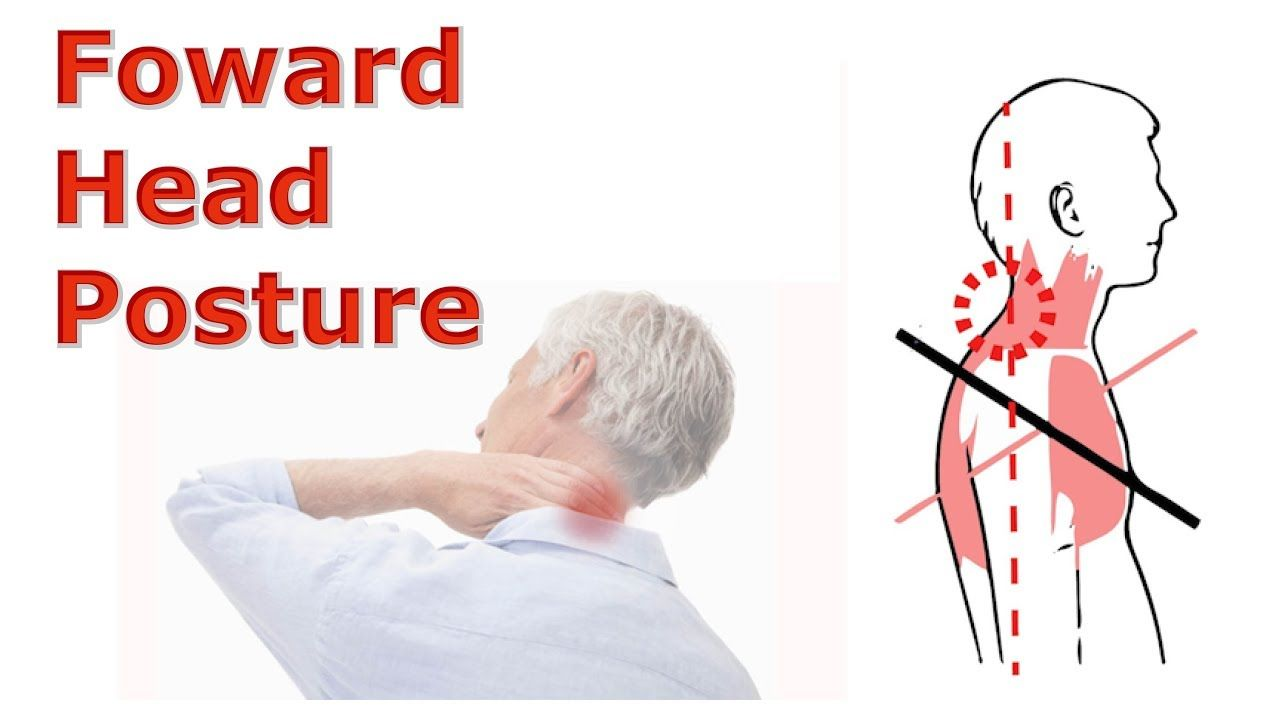 Forward Head Posture Is Caused By Daily Activities The Muscles In