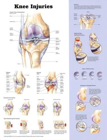 Knee Injuries Anatomical Chart Poster Print Clothes Pinterest