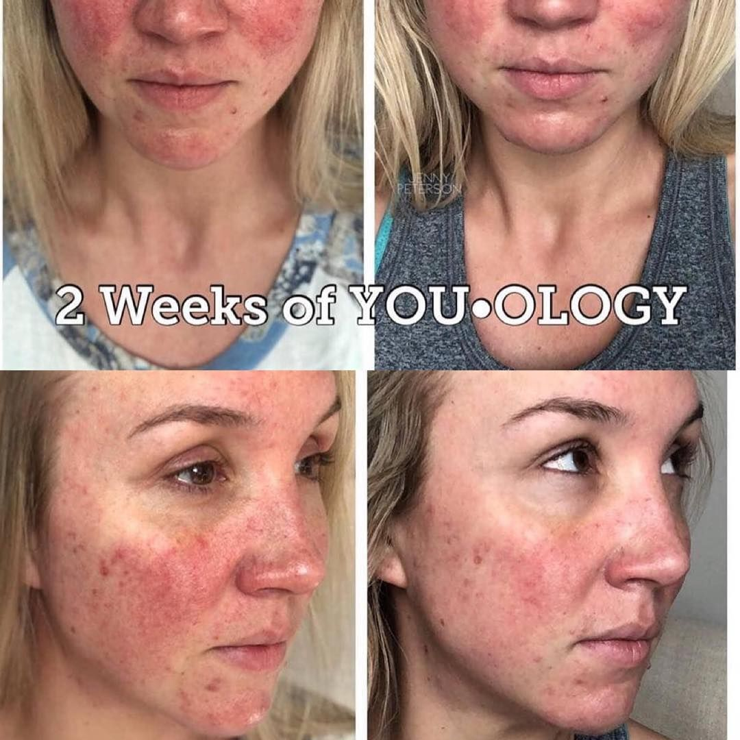 I Love Seeing The Results Come In From People Who Are Using You Ology The Personalised Skincare Regimes That Are Tailor Younique Skin Care Skin Quiz Younique