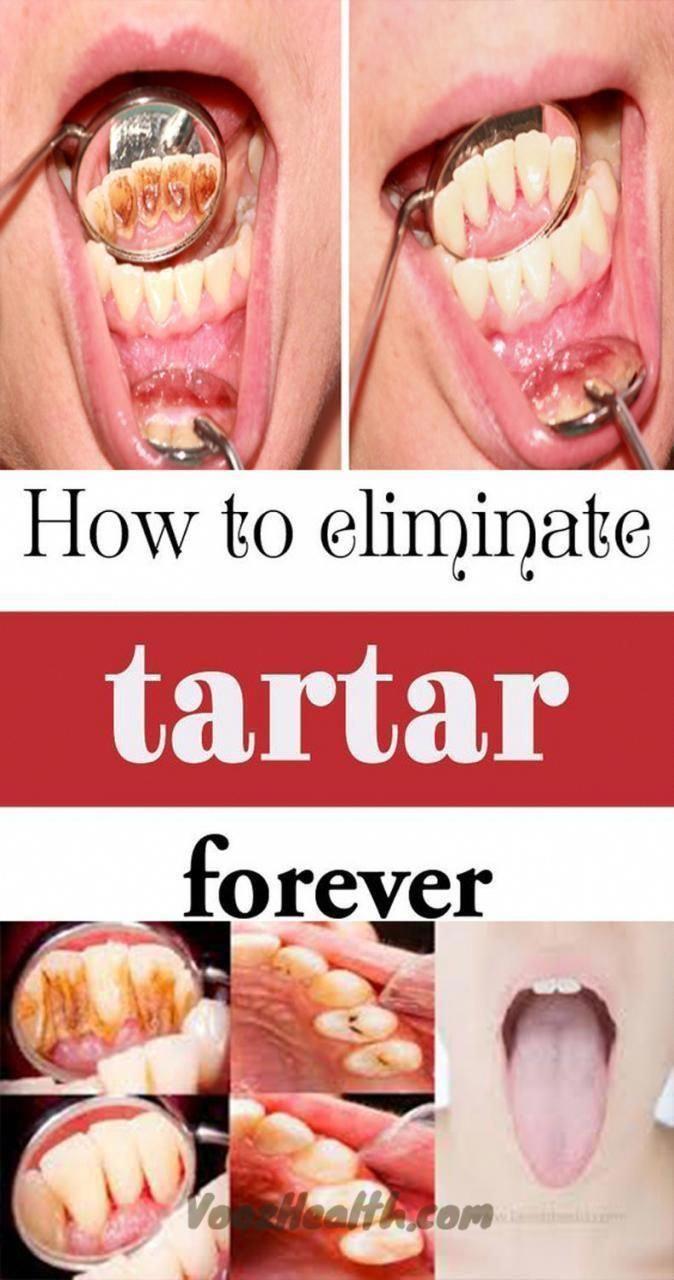 #Buildup #Dentist #Home #REMOVE #Tartar #Tricks #Vooz       Be Your Own Dentist! Here Are Tricks To Remove Tartar Buildup At Home – Vooz Tips #HowToTakeCareOralHealth #WhatAreTheOralCareTips