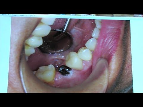 Dental Implants New Procedures Technology Low Cost Dental Implant Low Cost Dental Implants Teeth Implants Tooth Implant Cost