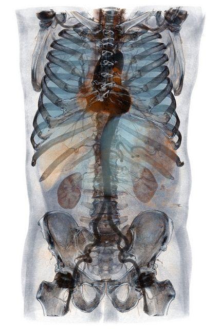Thoracoabdominal Angiography   Welle, Verschiedenes und Fotos
