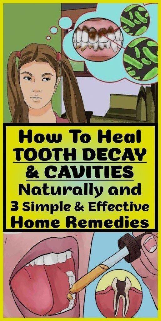 Understanding Receding Gums - Healthy Medicine Tip