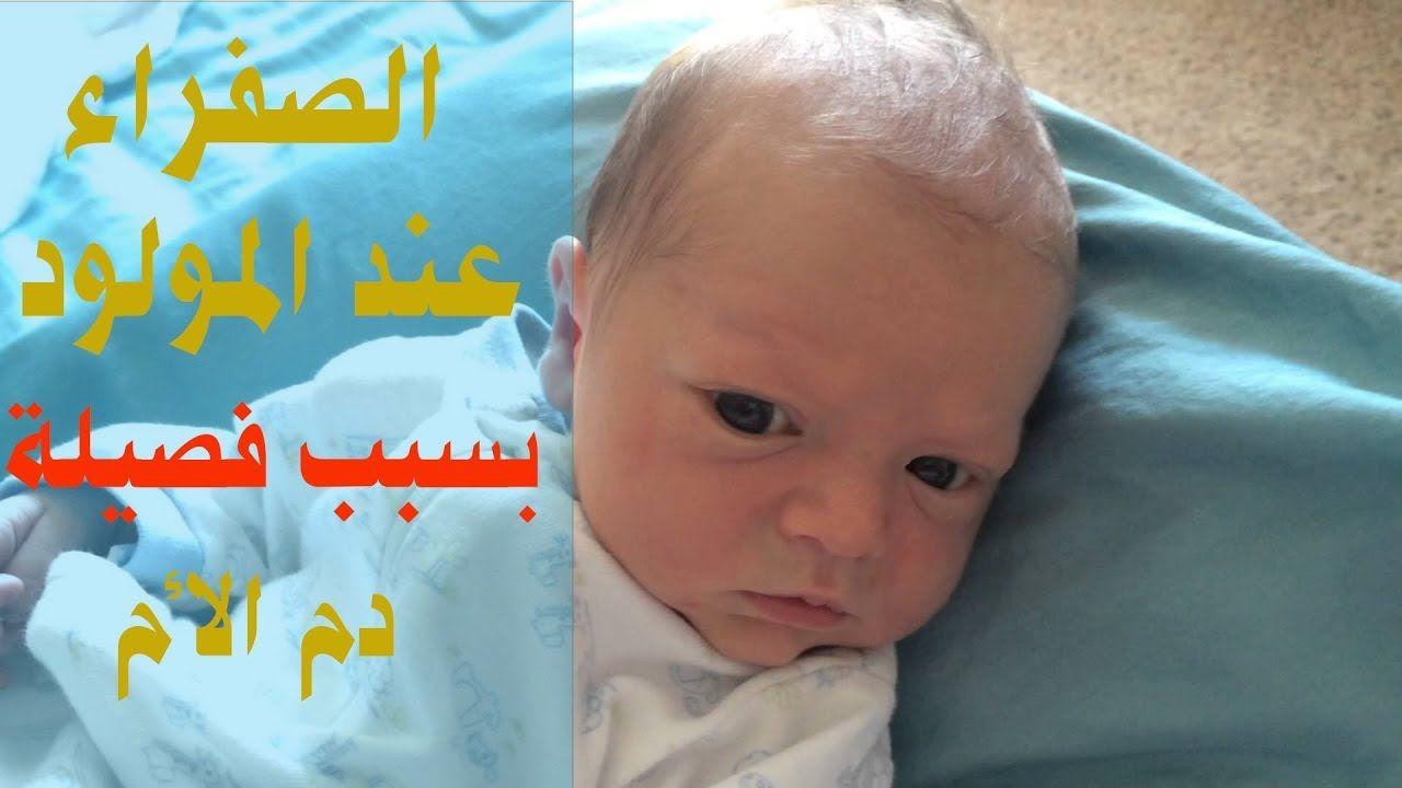 زيادة الصفراء عند المولود بسبب فصيلة دم الام Baby Face Face Baby