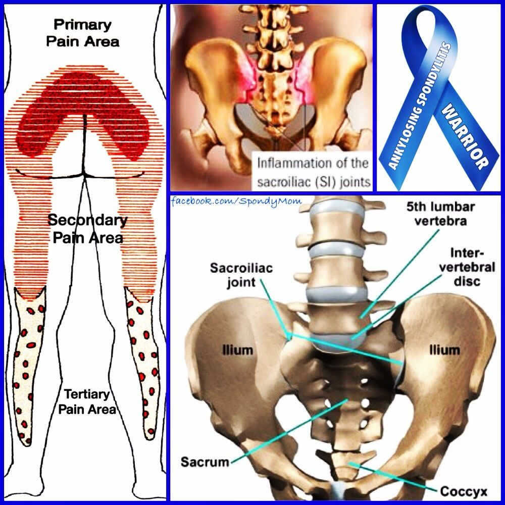 The hallmark feature of AS, is the involvement of the sacroiliac (SI ...
