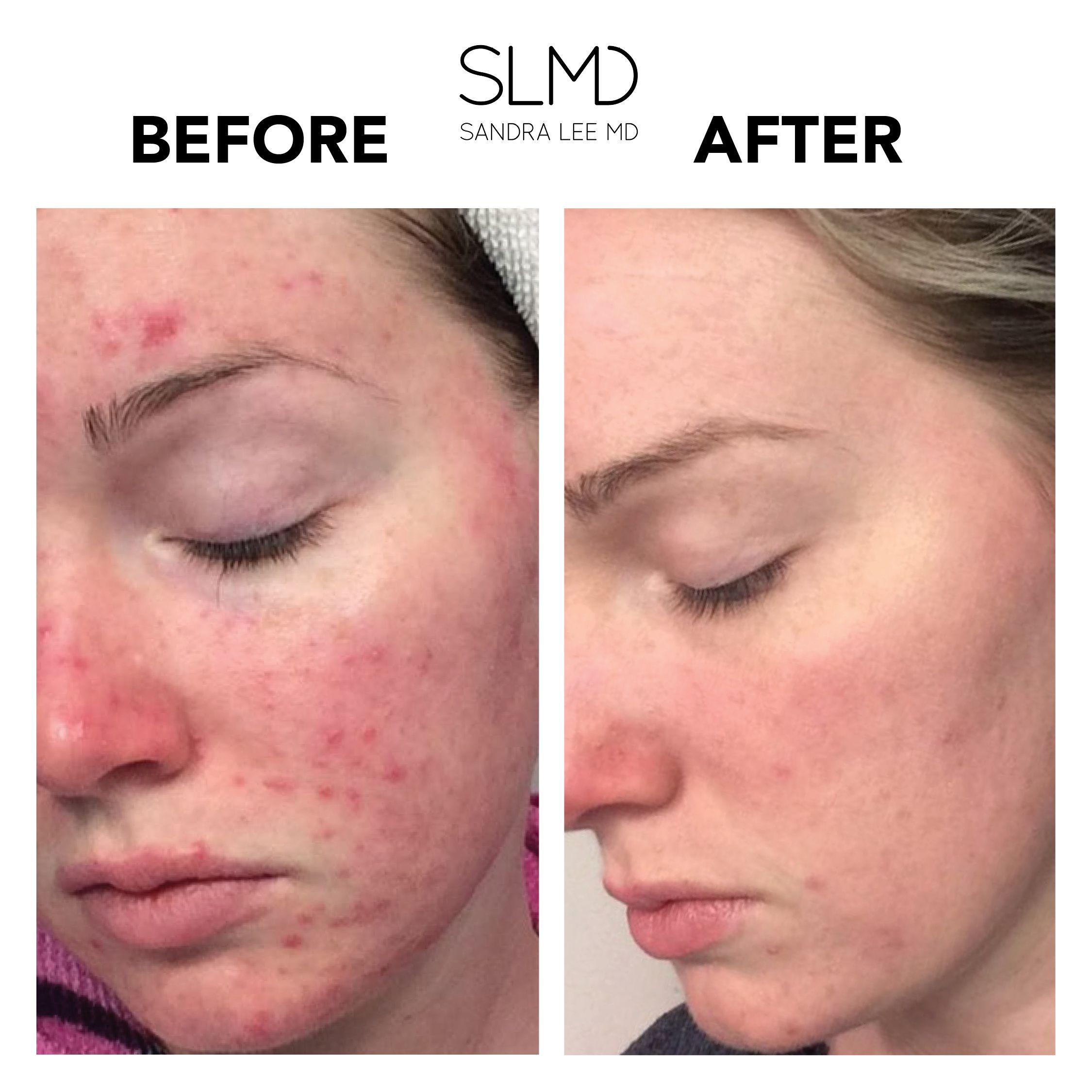 Acne System Simple Skincare Facial Moisturizers Skin Care Tips