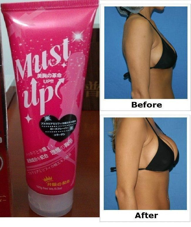Breast cream before and after