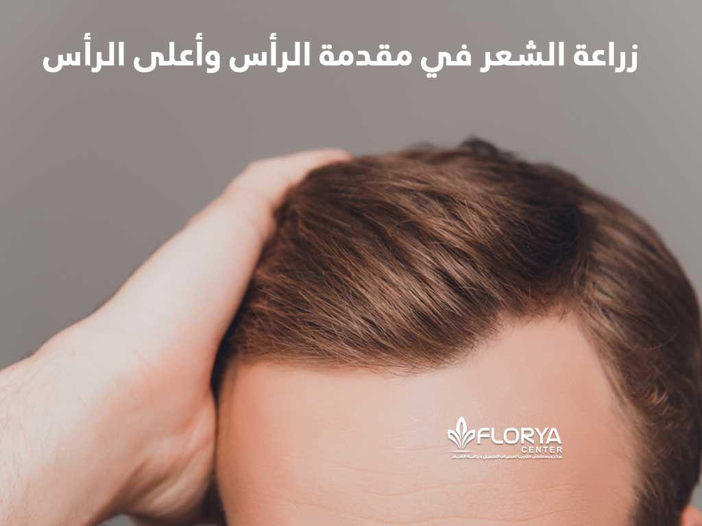 زراعة الشعر في مقدمة الرأس وأعلى الرأس تساقط الشعر غالبا ما يحدث للجميع وعملية زراعة الشعر في مقدمة الرأس وأعلى الرأس هي أمر شائع الحدوث جدا بين الرجال والنسا