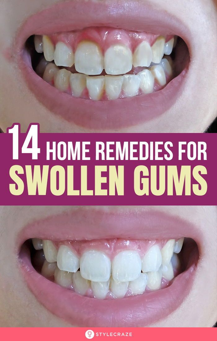 14 Home Remedies To Treat Swollen Gums Causes And Prevention Swollen Gum Swollen Gums Remedy Gum Inflammation
