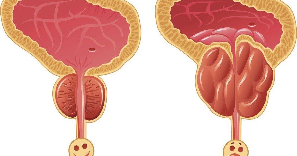 prostatitis lymphknoten