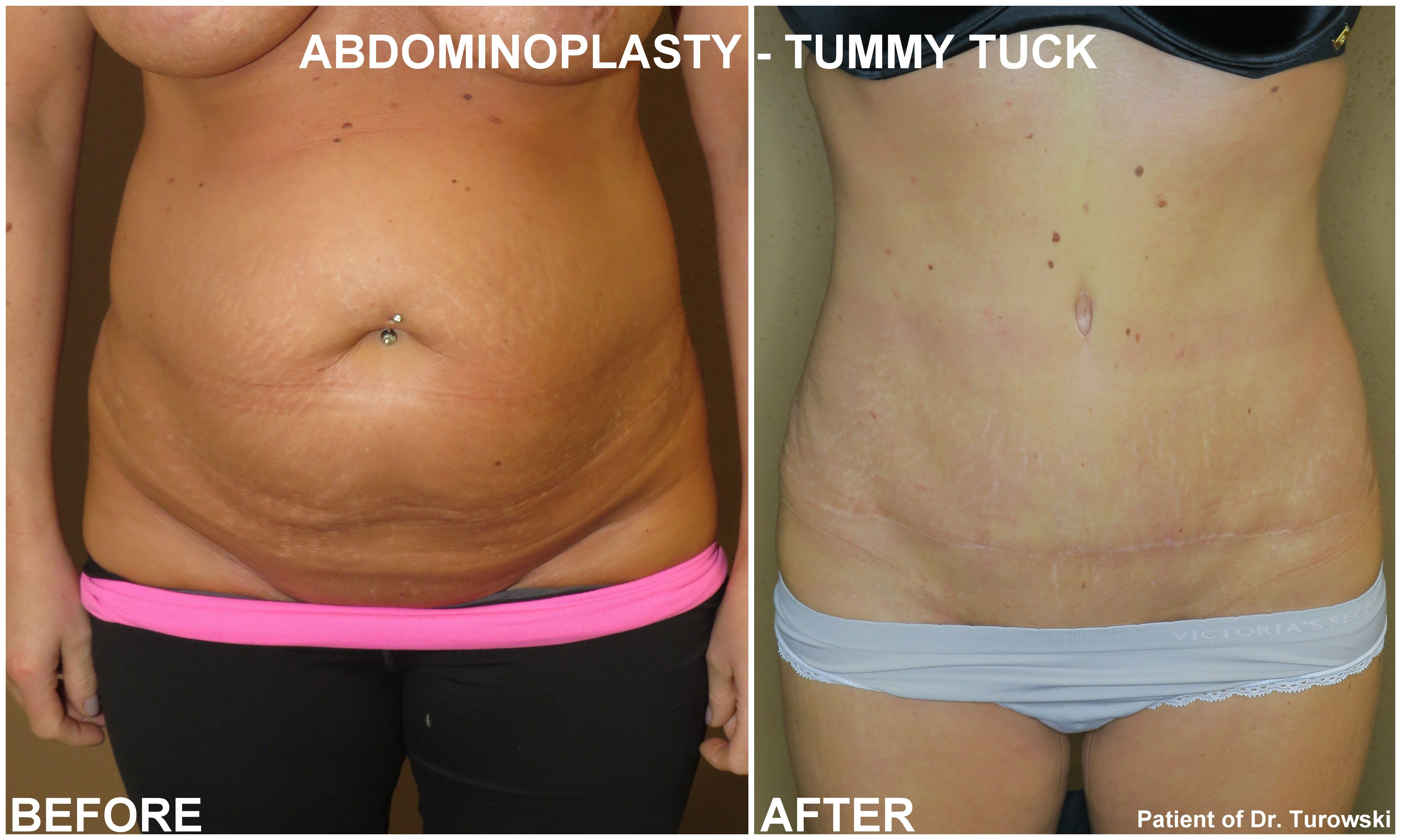 Pin by Dr  Gregory Turowski on Tummy Tuck Chicago | Tummy tucks