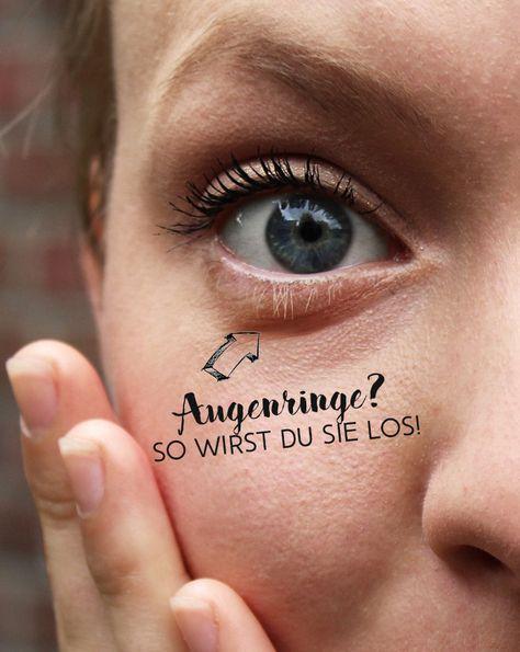 Was Tun Gegen Blaue Augenringe
