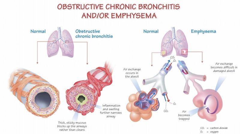 COPD (chronic obstructive pulmonary disease) is a term used to describe  long term cond… | Copd, Chronic obstructive pulmonary, Chronic obstructive  pulmonary disease