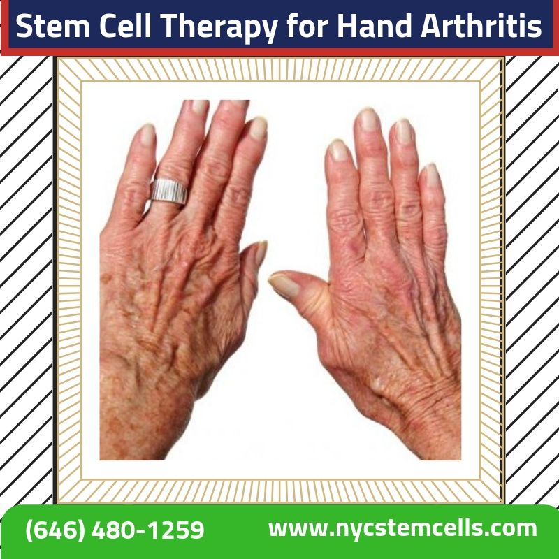 Arthritis in the hands may also be caused by rheumatoid