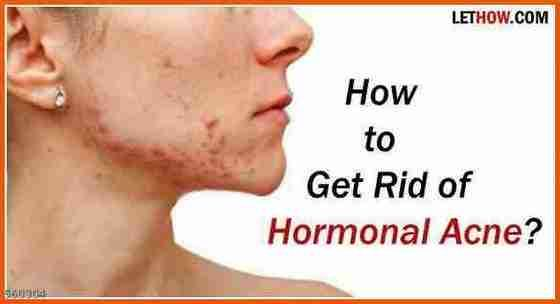 Can A Hormonal Acne Treatment Help Cure Acne Females And Hormonal