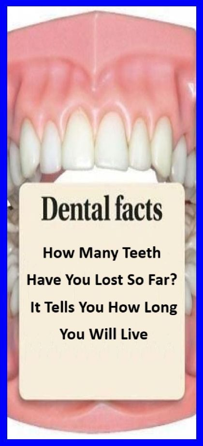 How Many Teeth Have You Lost So Far? It Tells You How Long You Will Live