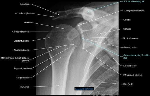 shoulder pectoral girdle shoulder girdle radiography. Black Bedroom Furniture Sets. Home Design Ideas